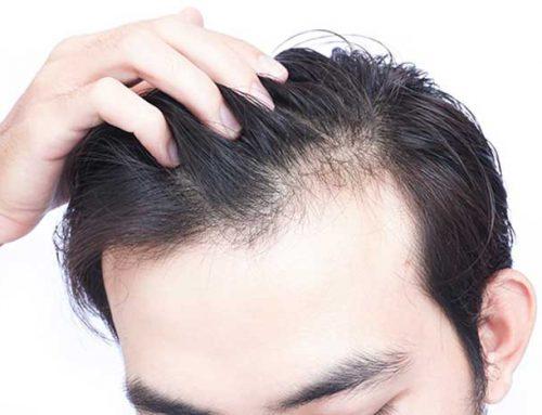 Penyebab dan Cara Mengatasi Rambut Lepek